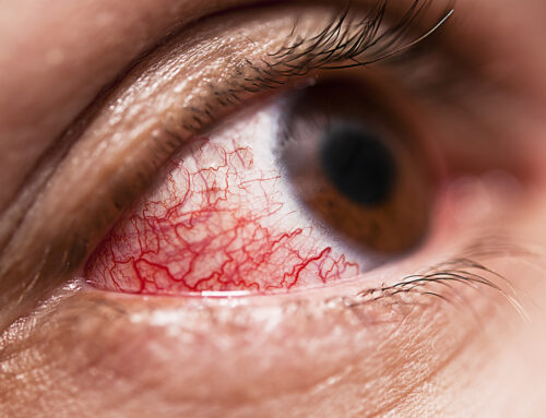 How To Treat Conjunctivitis
